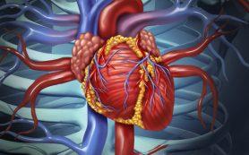 Лечение инсульта и других сердечных заболеваний