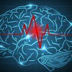 Микроинсульт: отличие от ишемического инсульта