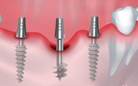 Основные этапы имплантации зубов