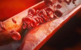 Что такое синдром сонной артерии?