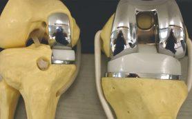 Как питаться после операции по замене коленного сустава?