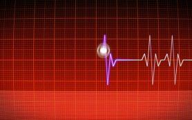 Виды инфаркта миокарда: ангинозная, атипичные и другие формы