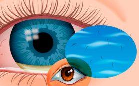 Мушки в глазах: Почему появляются и что делать?