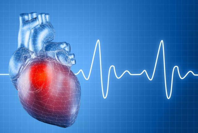 Что такое амилоидоз сердца?