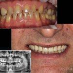 Что такое имплантация зубов в Киеве?