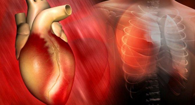 Нарушение ритма сердечной деятельности