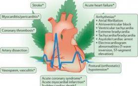 Марихуана и риски инфаркта