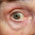Проблемы с глазами при диабете - серьезная ретинопатия
