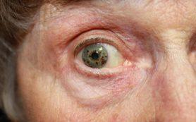 Проблемы с глазами при диабете — серьезная ретинопатия