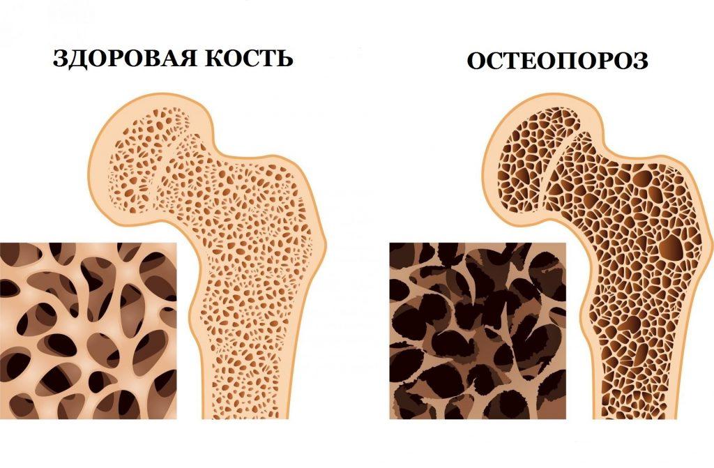 Остеопороз — симптомы остеопороза