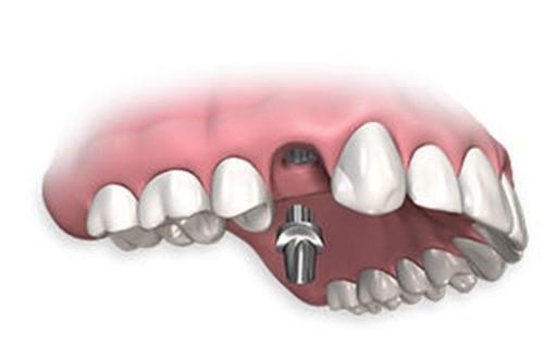 Советы молодоженам: имплантация зубов