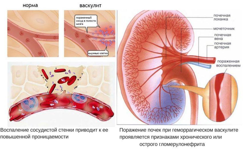 Детская болезнь почек- геморрагический васкулит
