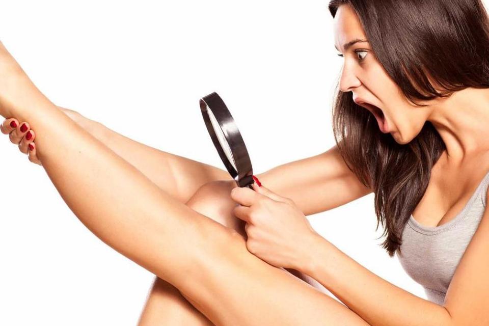 2 способа избавиться от вросших волосков после депиляции
