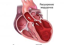 Как лечить аритмию сердца?