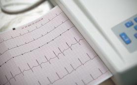 Мерцательная аритмия: лечение патологии сердца