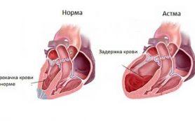 Определение функционального состояния сердца после инфаркта