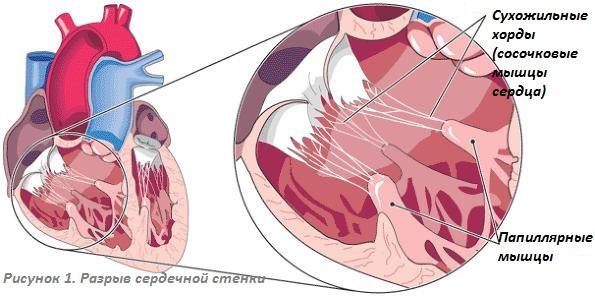 Сосочковые (папиллярные) мышцы