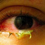 Зубная боль, аллергия, конъюнктивит и еще 4 болезни, которые лечит чай