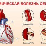 Что представляет собой ишемия сердца?