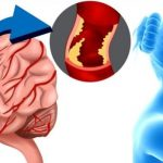 Что такое инсульт, как его распознать и каких последствий ожидать?