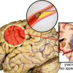 Ишемический инсульт – лечение