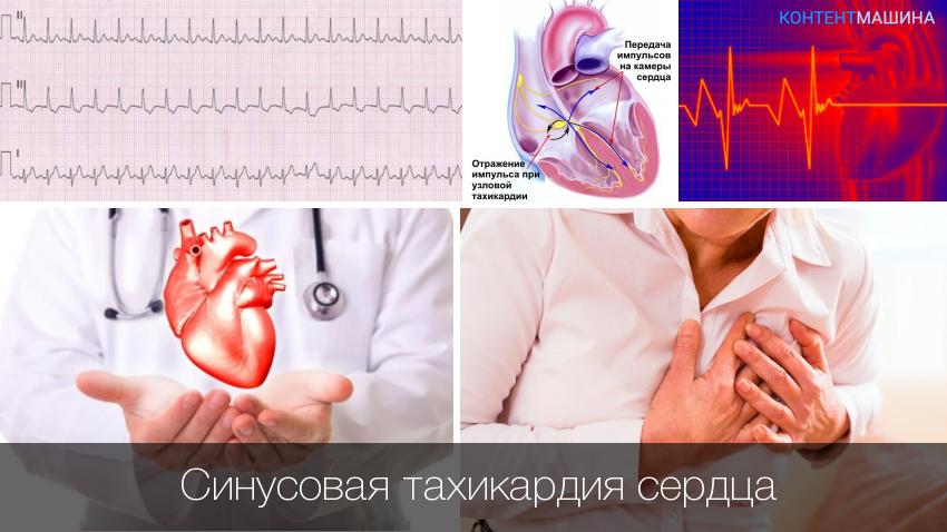 Синусовая тахикардия сердца: как лечится?