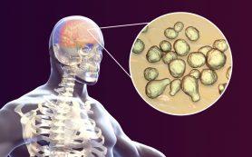 Менингит — симптомы