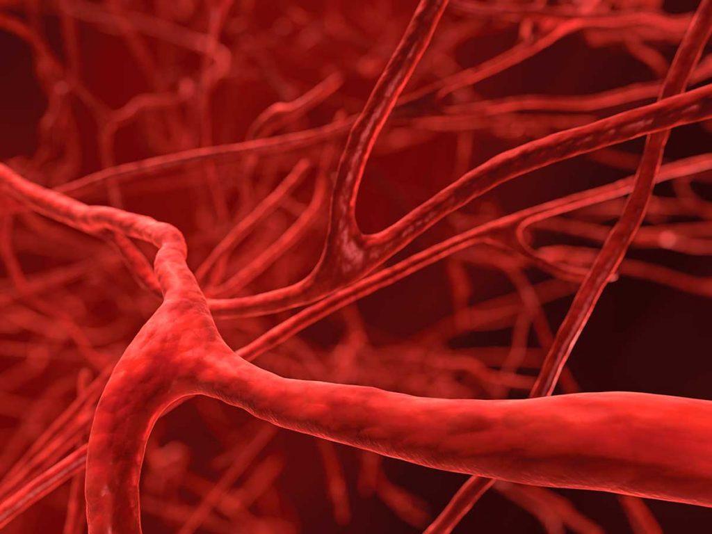 Эксперты назвали четыре простых способа снизить риск тромбоза