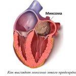 Опухоли сердца