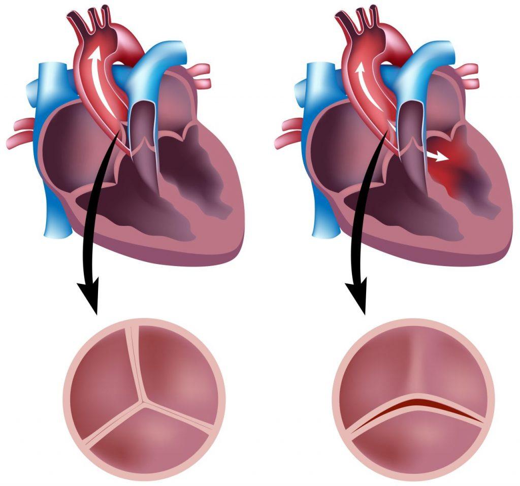 Сердечные клапаны — это?