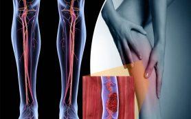 Тромбофлебиты и тромбозы