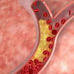 Тромб: симптомы и первые признаки