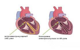Блокада сердца у взрослых