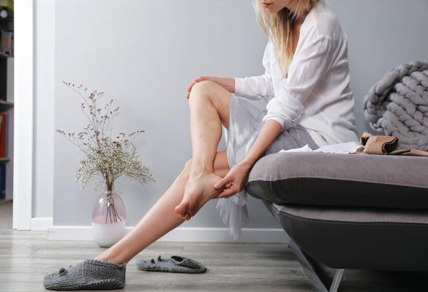 Ноги в сеточку: врач объяснил, о чем сигнализируют «сосудистые звездочки»