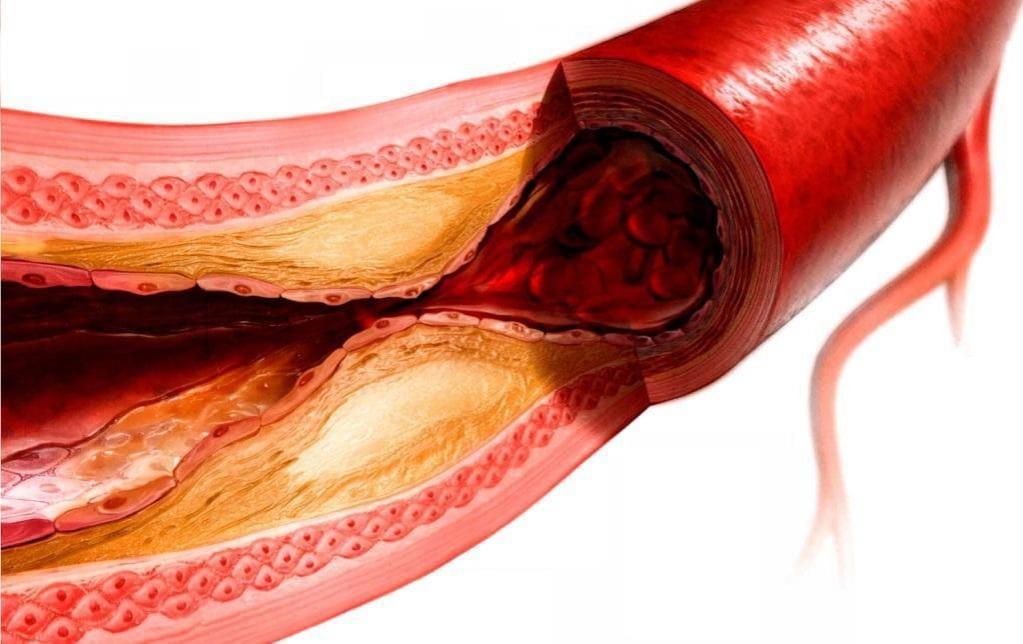 Атеросклероз у взрослых