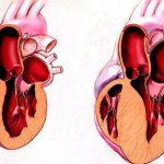 Сердце не камень: когда женщине нужна помощь кардиолога?
