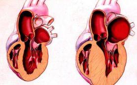 Кардиомиопатия сердца у взрослых
