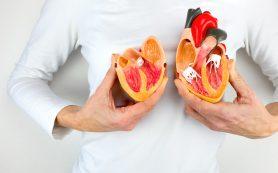 Ишемическая болезнь сердца: почему «барахлит» мотор
