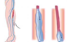 Варикозная болезнь: консервативные и хирургические методы лечения