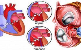Пролапс митрального клапана — симптомы и лечение
