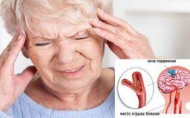 Микроинсульт – симптомы и лечение