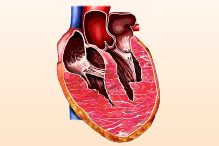 Три стакана сока в день вдвое повышают риск болезни сердца