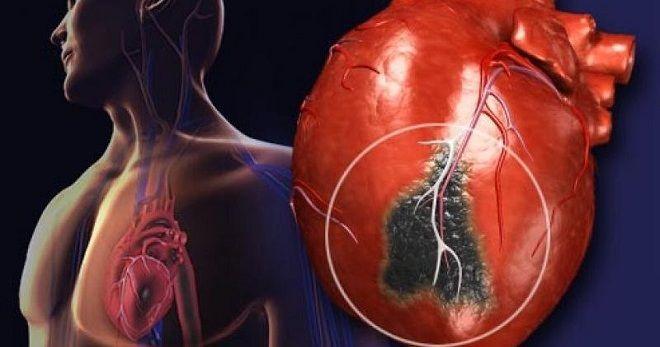 Как жить при стенокардии? В каких случаях ее оперируют?