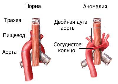 Двойная дуга аорты