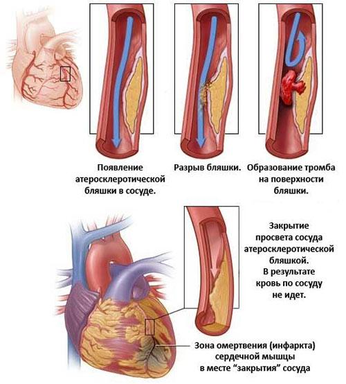 Инфаркт миокарда: причины и симптомы