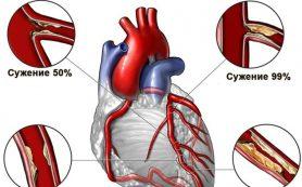 Фитотерапия заболеваний сердечно-сосудистой системы