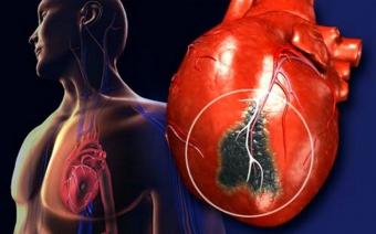 Гипокинезия сердца