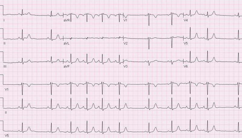 Аритмия сердца: лечение, причины и симптомы заболевания
