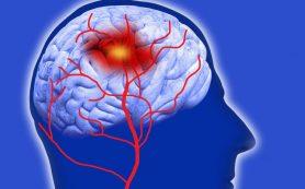 Мигрень повышает риск сердечно-сосудистых заболеваний