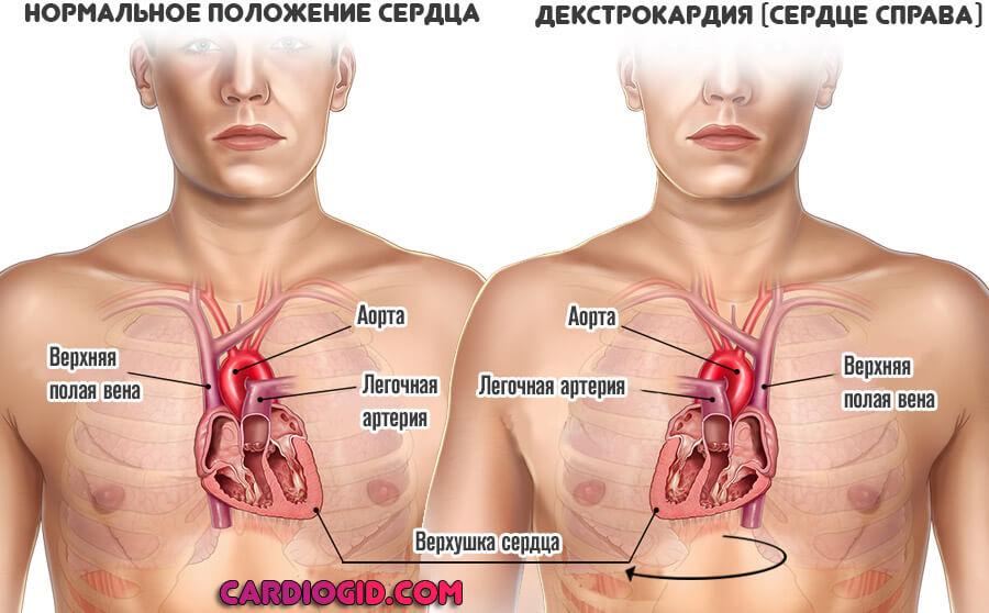 Декстрокардия